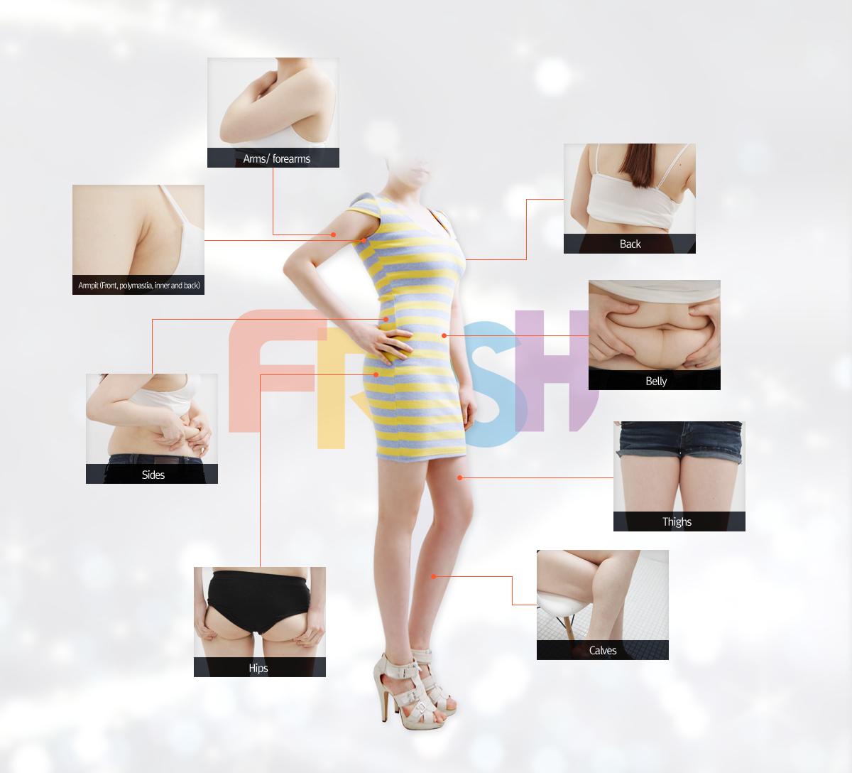 full body liposuction