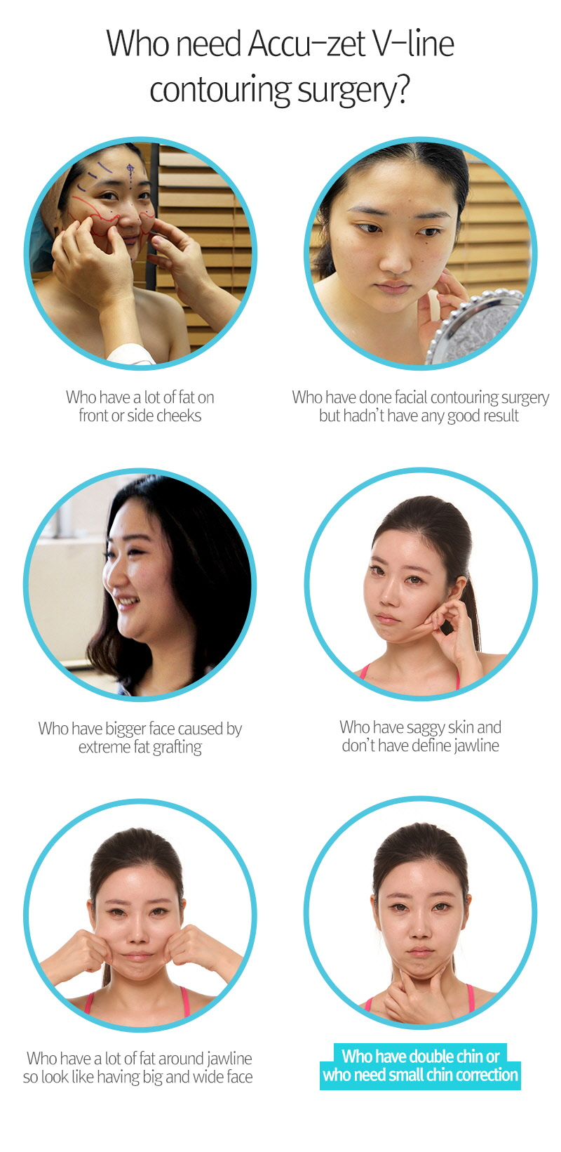 breast surgery in korea