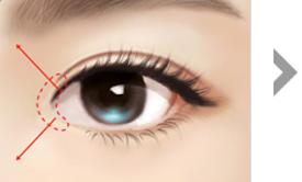 절개영역 내에 위치한 피부를<br>주위조직에 분리시킵니다.