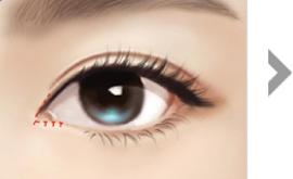 불필요한 피부를 제거하고 흉터가<br>보이지 않게 눈 안쪽으로<br>봉합합니다.