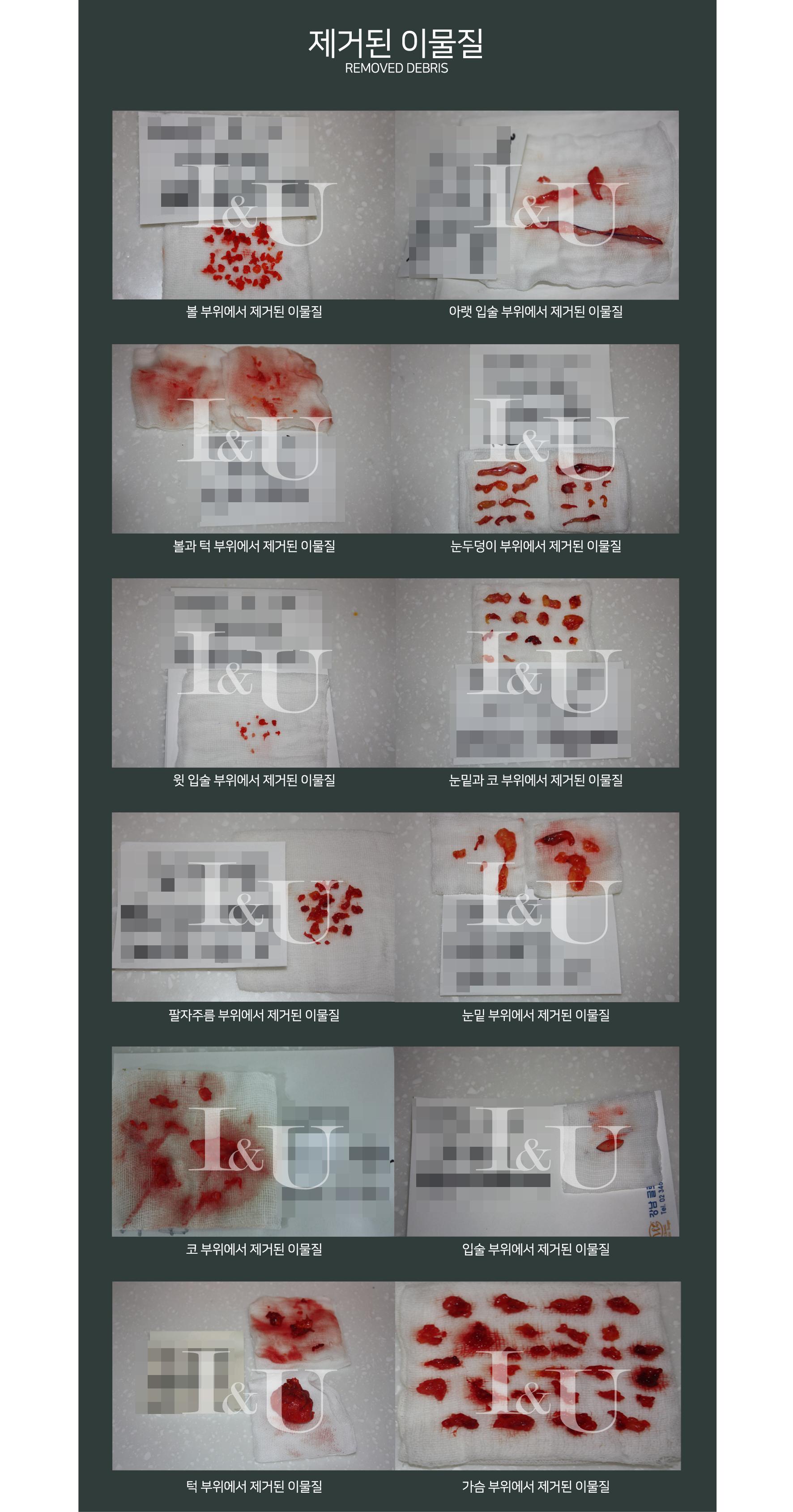 아이앤유성형외과, 이물질제거 전후사진