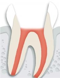 충치 혹은 외상으로 인하여 치아 신경에 염증이 발생된 모습입니다