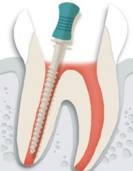 치아 뿌리의 길이를 잰 뒤, 치아 뿌리 내부를 매끄럽게 다듬습니다