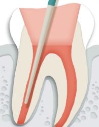 치아뿌리 내부에 치과 재료를 사용하여 빈 공간을 메워 줍니다