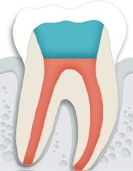 신경치료가 완료된 치아는 치아 전체를 치과 재료로 씌우고 마무리를  해줍니다