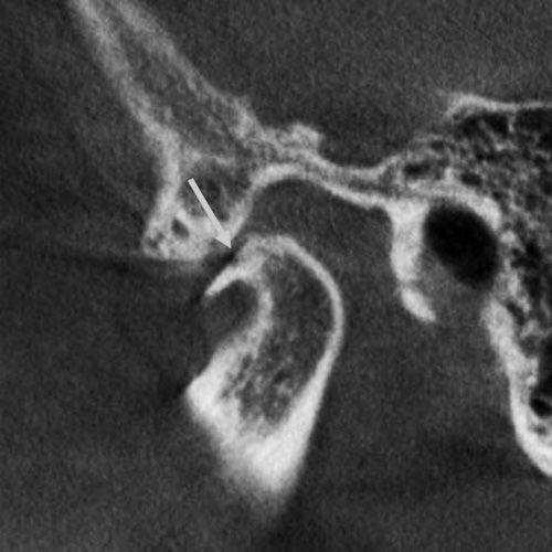 뼈의 퇴행성 변화