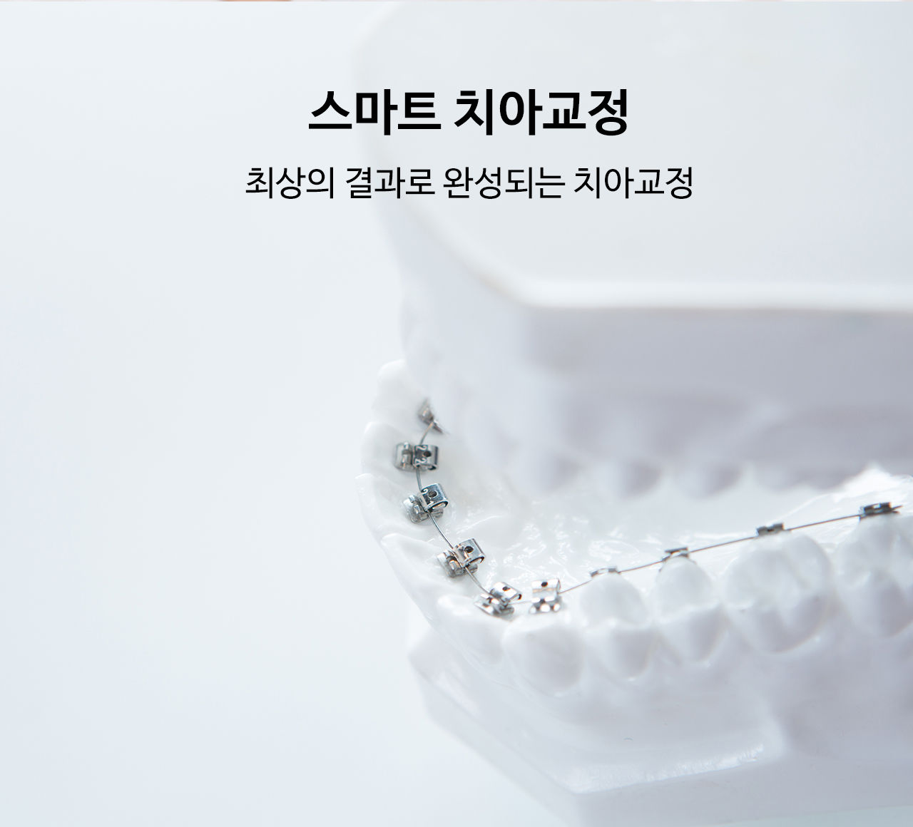 스마트 치아교정