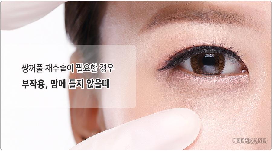 눈성형 재수술이 필요한 경우 강남 눈재수술 눈성형센터 컬럼