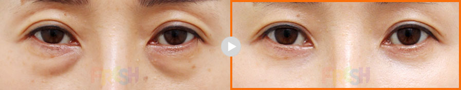 lower eyebag reposition