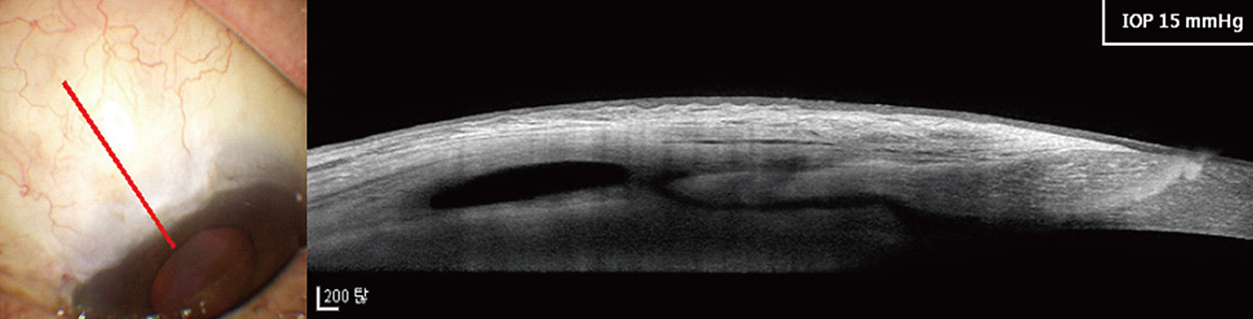 섬유주절제술후의 여과포(물주머니) 모습과 OCT 상 여과포 단면 사진