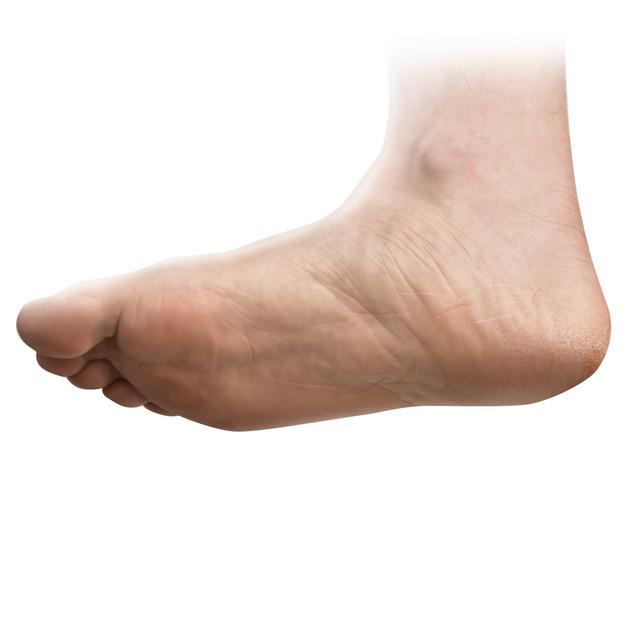 발 가운데 또는 발 전체