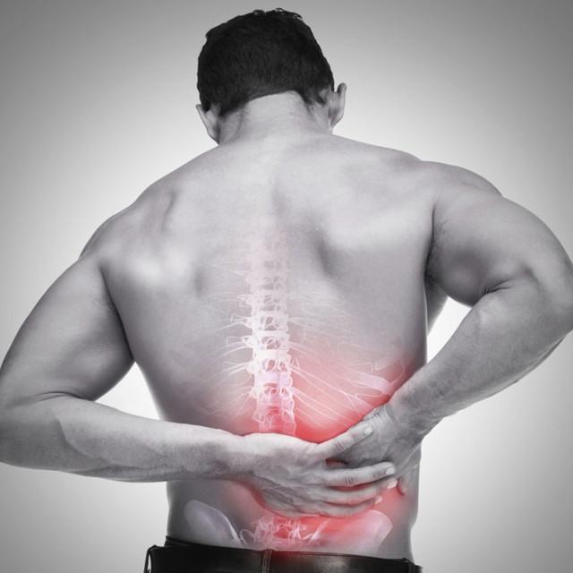 디스크, 척추관 협착증, 요추염좌