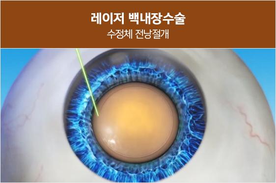 레이저로 수정체 전낭을<br>정확하게 절개하기 때문에 정교하고 안전합니다.