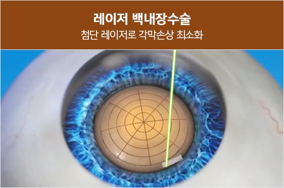 레이저로 각막을 절개하고 각막생체인식으로 수정체를<br>정교하게 파쇄하여 각막 손상이 최소화됩니다.