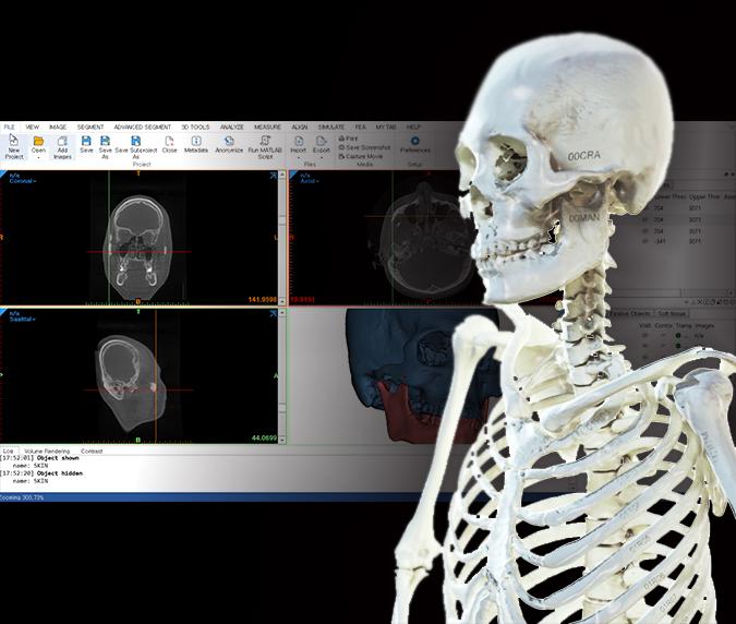 전신CT데이터로부터 약 200개의 전신뼈를 3D데이터로 추출하여 출력한 사례
