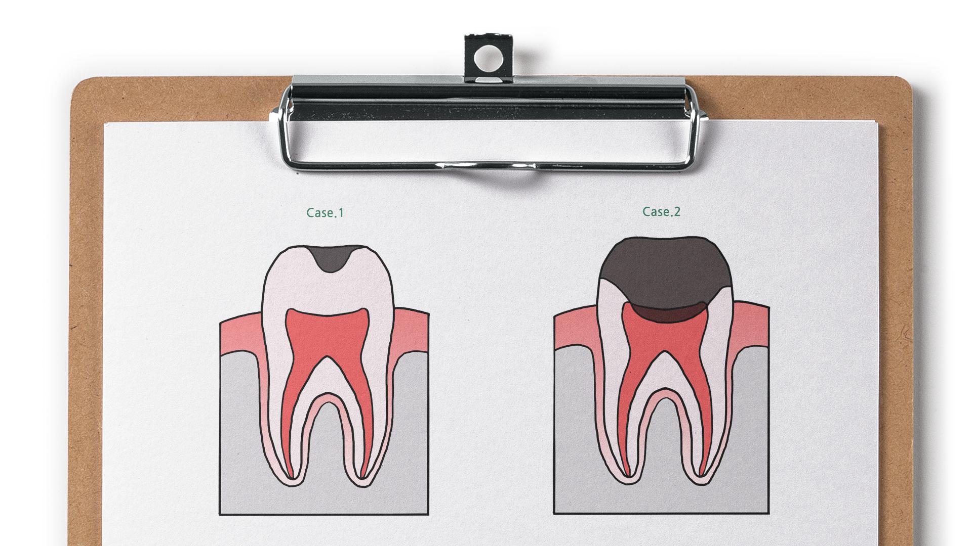 치과 신경치료
