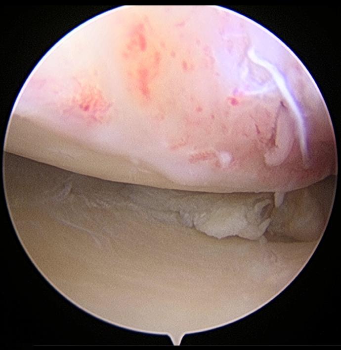 손상된 반월상 연골