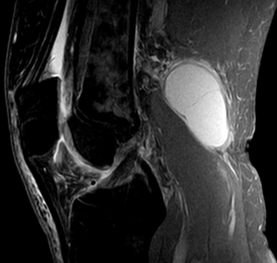 베이커씨낭종 MRI