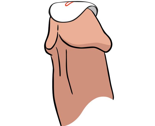 2. 흰색 겉지를 뗀 후, 성기의 요도 위치에 정확히  부착합니다.
