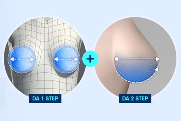 Máy phân tích 3 chiều của DA