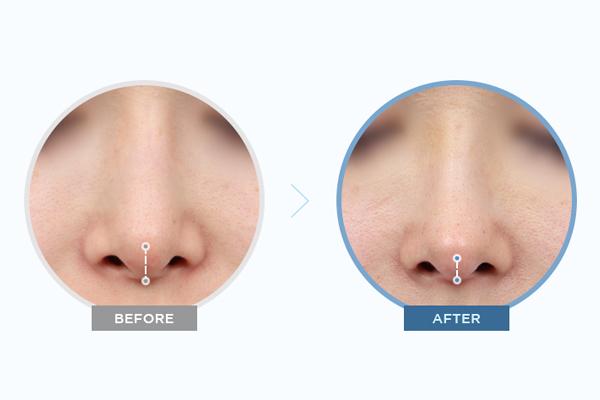 Mức độ đẹp tùy thuộc vào độ dài của mũi và vách ngăn mũi