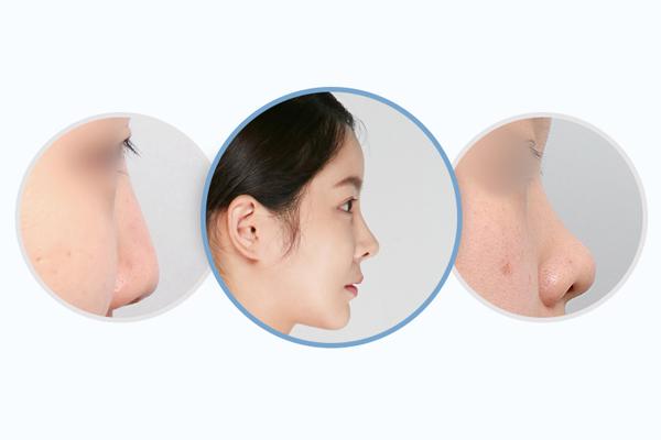 Chiều cao của mũi đẹp tùy thuộc vào chóp mũi