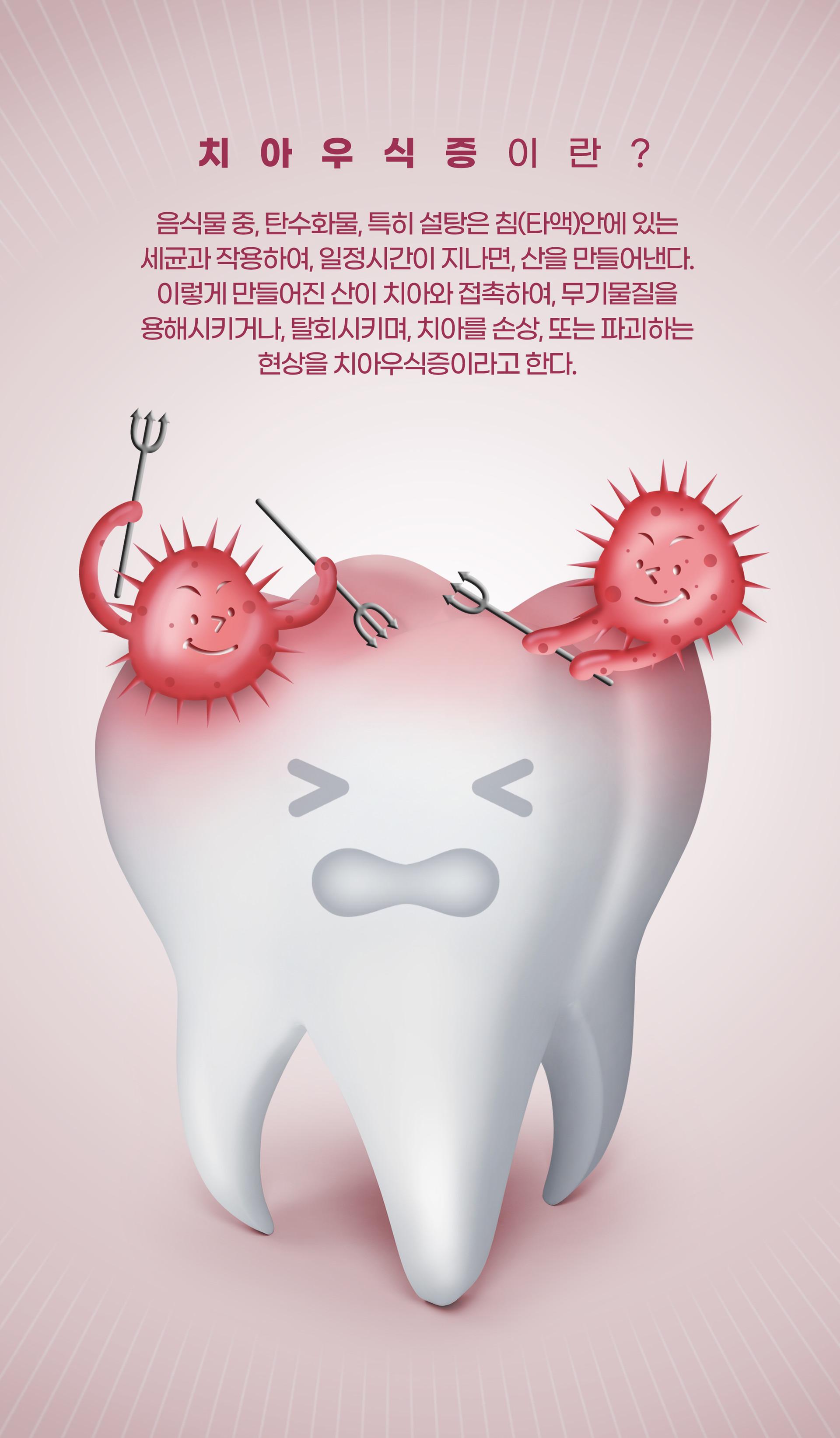 치아우식증이란?