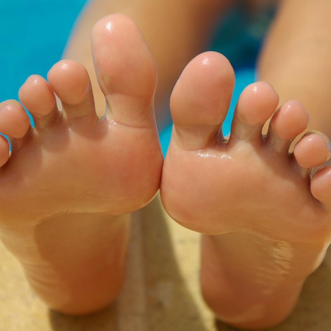 발 피부질환