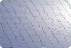 2002년 1월 7일 광주의 호남병원에서<br>율리아님이 뇌파검사를 받는 모습