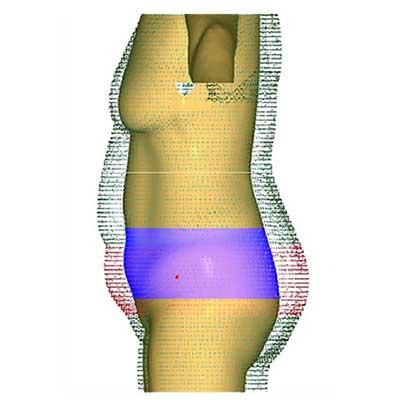 3D 바디스캐너 비만관리 S/W. PMT Innovation