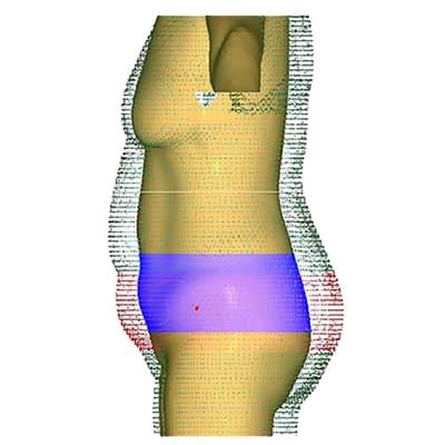 3D Body Scanner. Obesity Management S/W