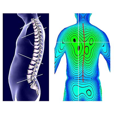 3D Body Scanner. Posture Analysis S/W