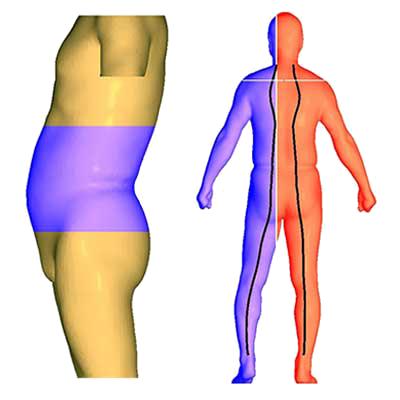 3D Body Scanner. Obesity & Posture Management S/W