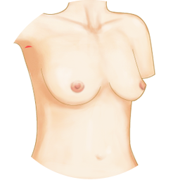 Implant breast augmentation
