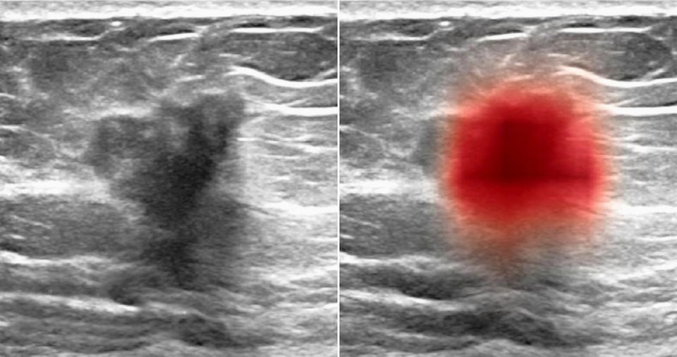 연구팀의 AI로 유방 초음파 이미지에서 암을 식별한다(왼쪽, 중앙의 어두운 부분, 오른쪽은 컴퓨터에서 강조 표시된 빨간색).사진:뉴욕대