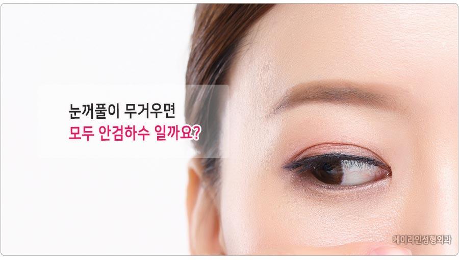 눈꺼풀 처짐 안검하수?