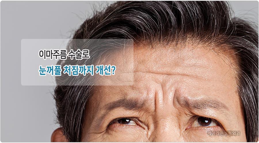 눈꺼풀처짐 개선 이마주름수술