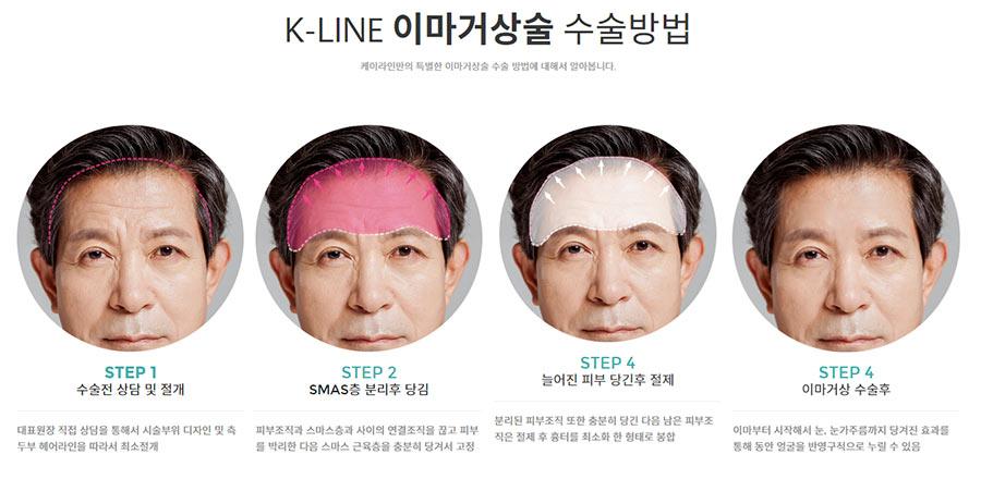 강남 케이라인 이마거상술