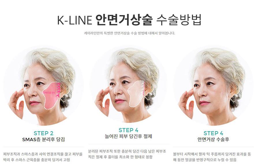 강남케이라인성형외과 안면거상술
