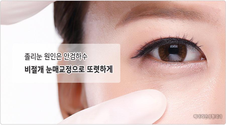 안검하수 비절개눈매교정