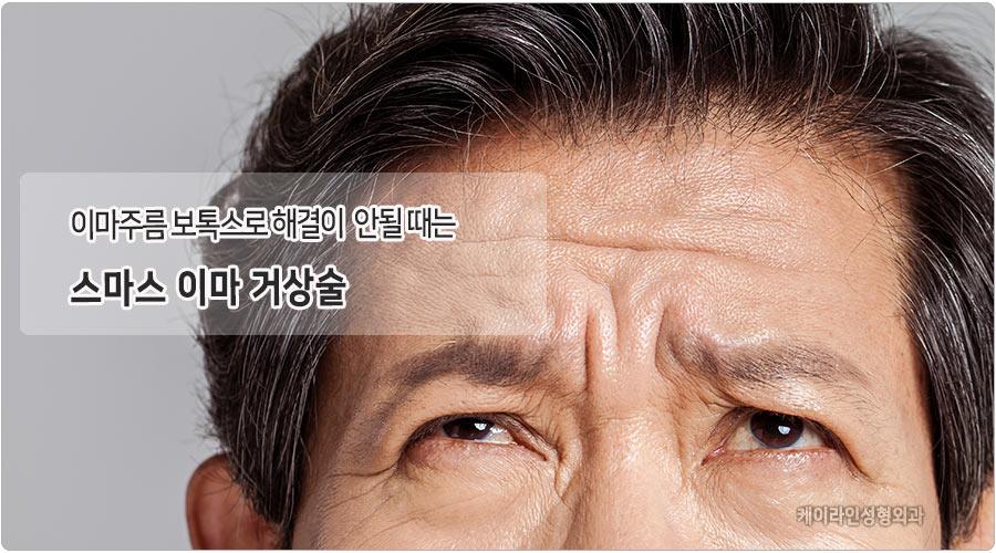 강남 이마거상술