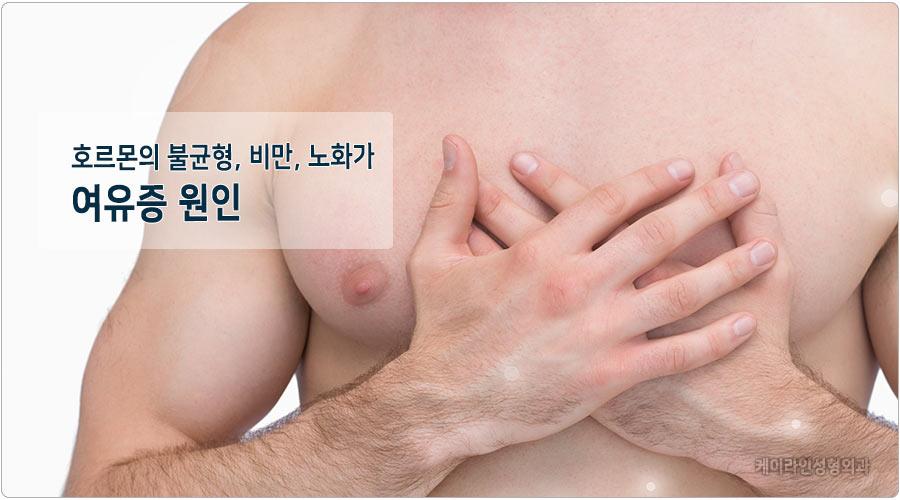 여유증원인은 호르몬불균형
