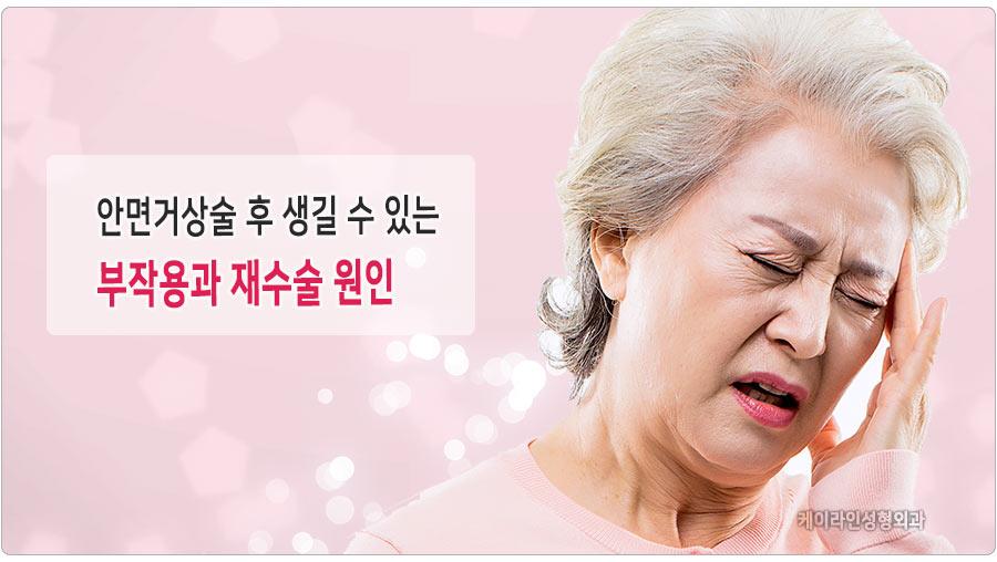 안면거상술 부작용