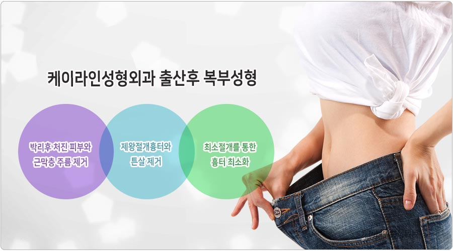 케이라인성형외과 복부성형