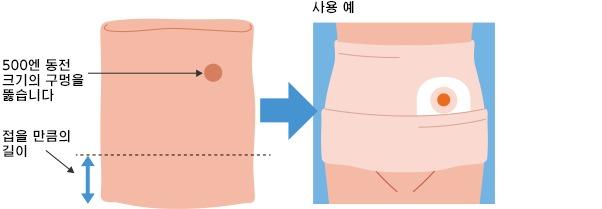 복대 튜브의 사용 예