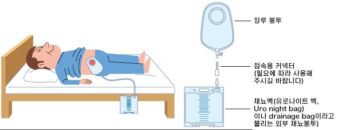야간의 소변량에 따른 용량의 채뇨 봉투에 연결