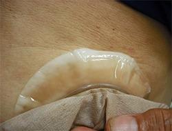그림5 피부보호제 외연의 땀과 한진(땀띠)